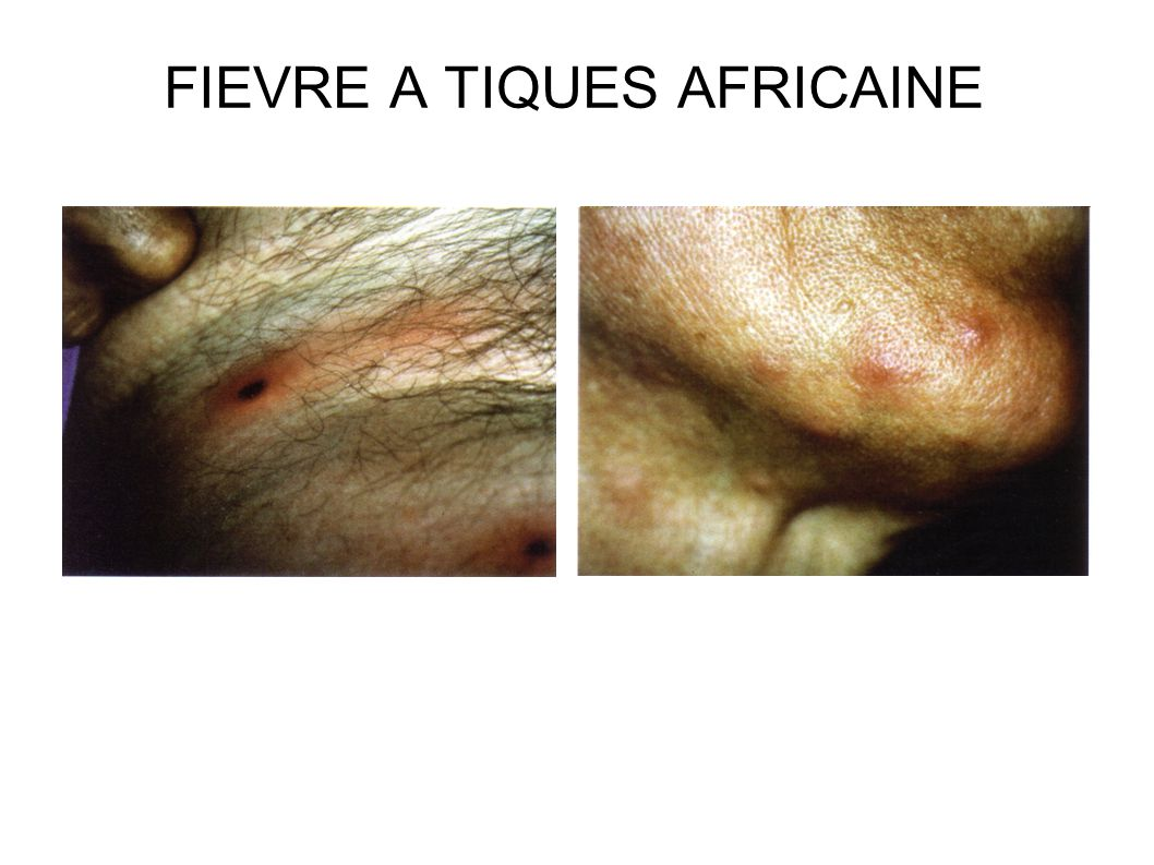 FIEVRE A TIQUES AFRICAINE
