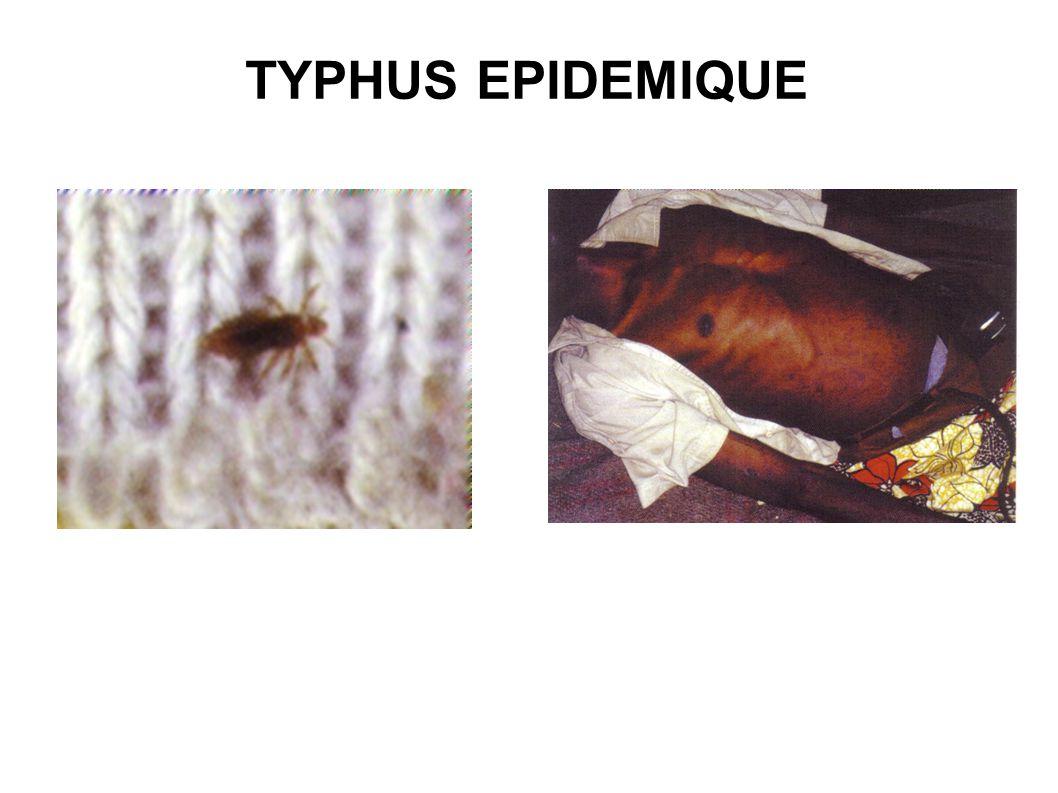 TYPHUS EPIDEMIQUE