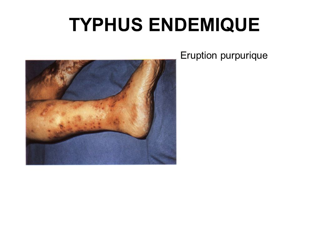 TYPHUS ENDEMIQUE Eruption purpurique