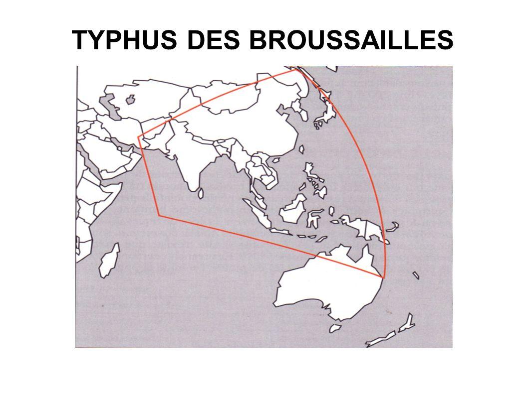 TYPHUS DES BROUSSAILLES