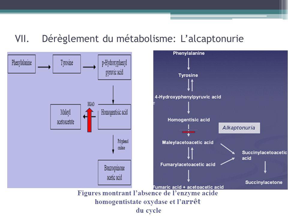 Dérèglement du métabolisme: L'alcaptonurie