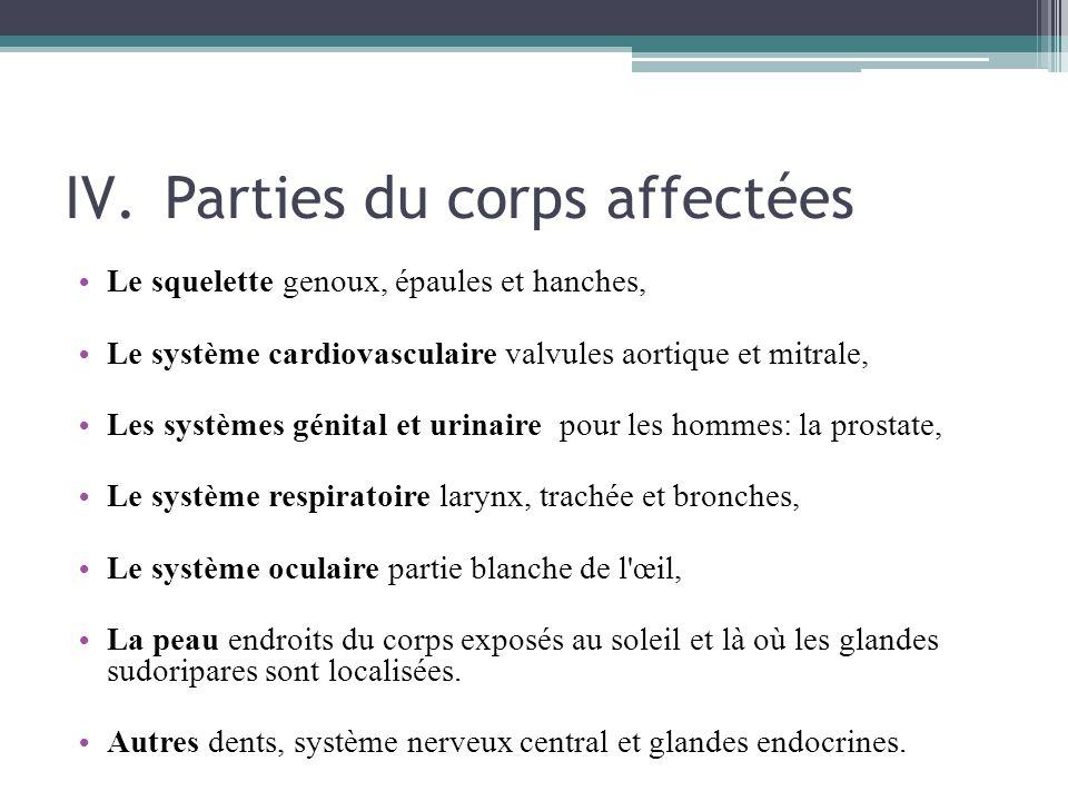 Parties du corps affectées