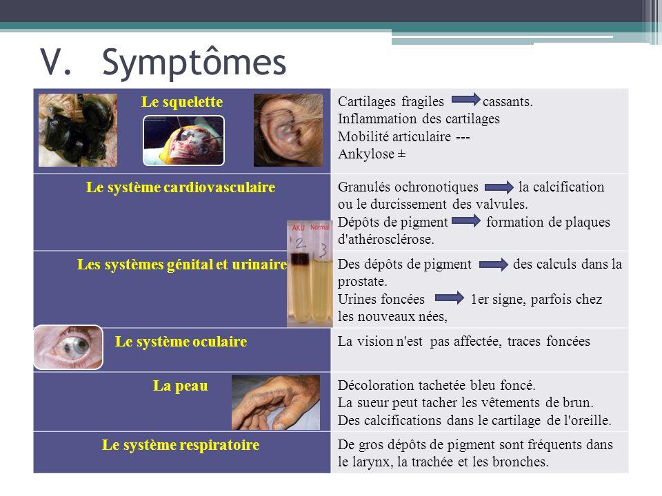 Symptômes Le squelette Le système cardiovasculaire