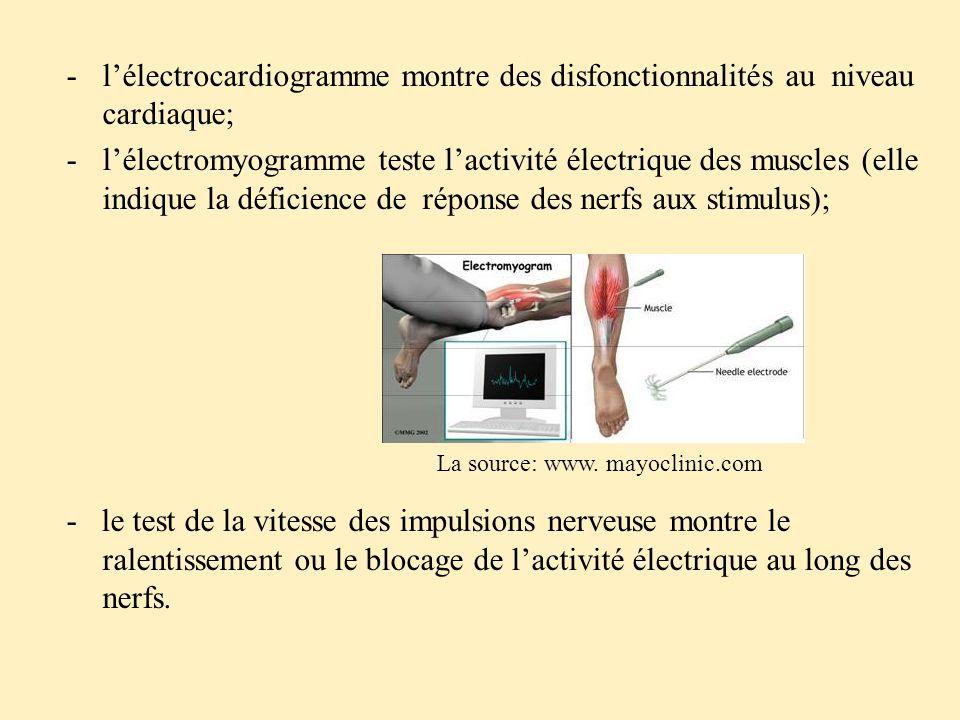 l'électrocardiogramme montre des disfonctionnalités au niveau cardiaque;