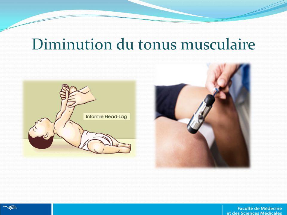 Diminution du tonus musculaire