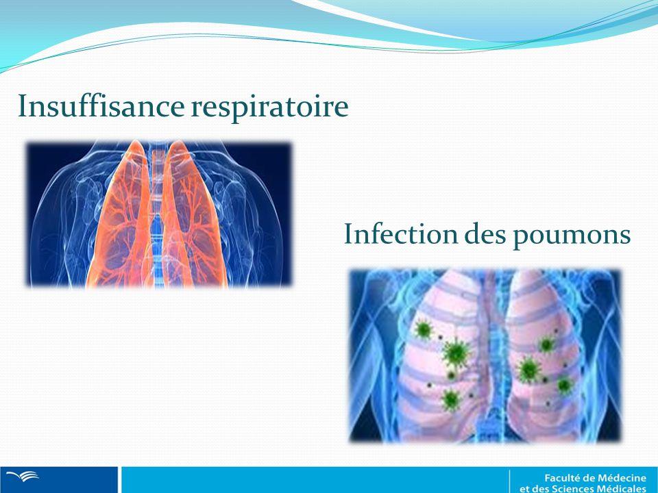 Insuffisance respiratoire