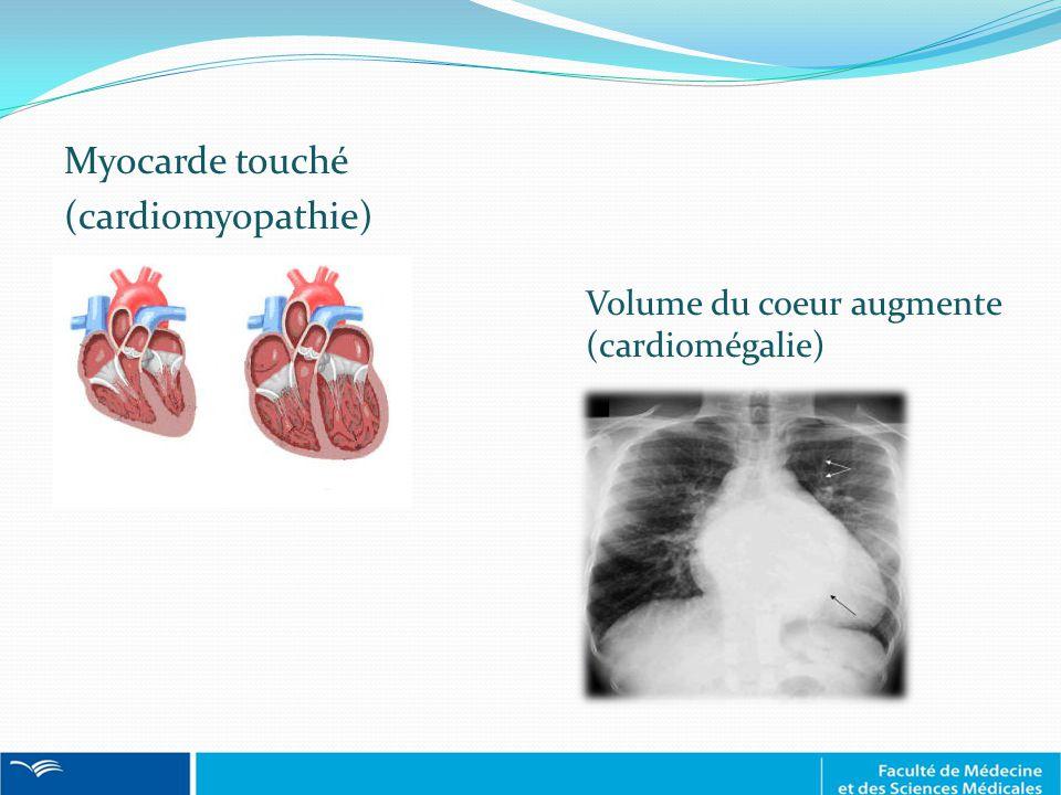 Myocarde touché (cardiomyopathie)