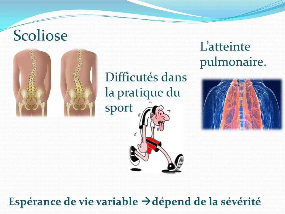 Scoliose L'atteinte pulmonaire. Difficutés dans la pratique du sport