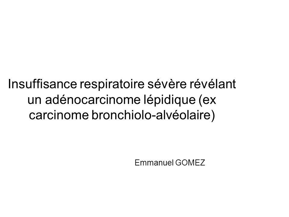 Insuffisance respiratoire sévère révélant un adénocarcinome lépidique (ex carcinome bronchiolo-alvéolaire) Emmanuel GOMEZ
