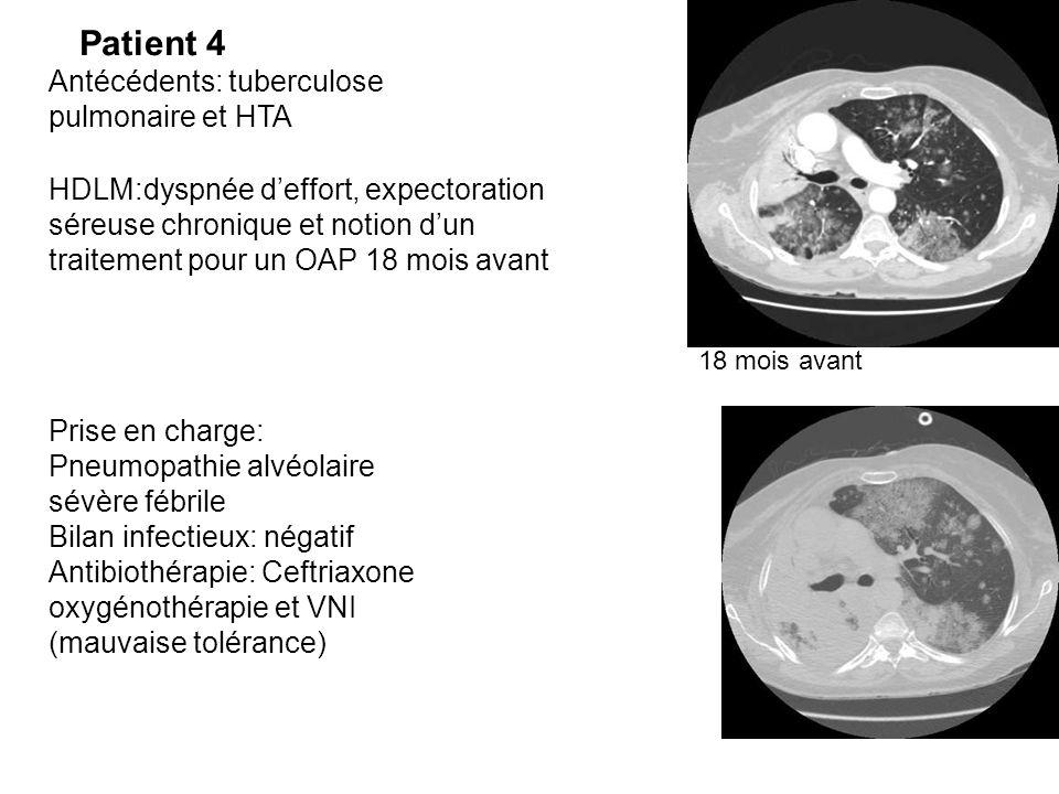Patient 4 Antécédents: tuberculose pulmonaire et HTA