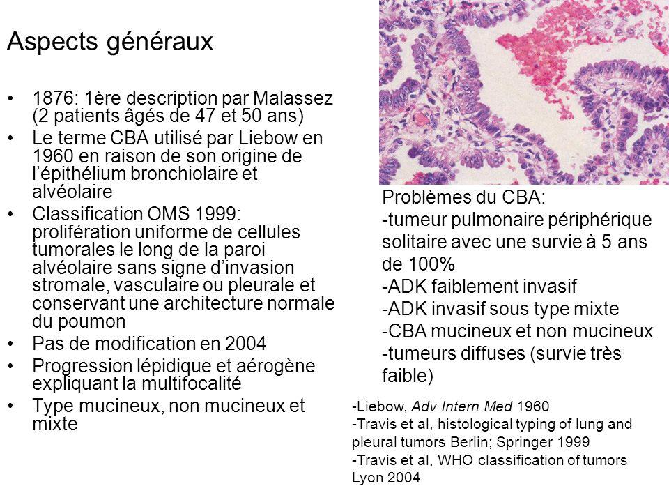 Aspects généraux 1876: 1ère description par Malassez (2 patients âgés de 47 et 50 ans)