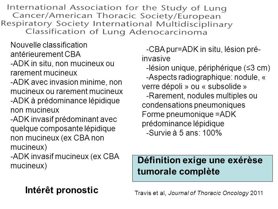 Définition exige une exérèse tumorale complète
