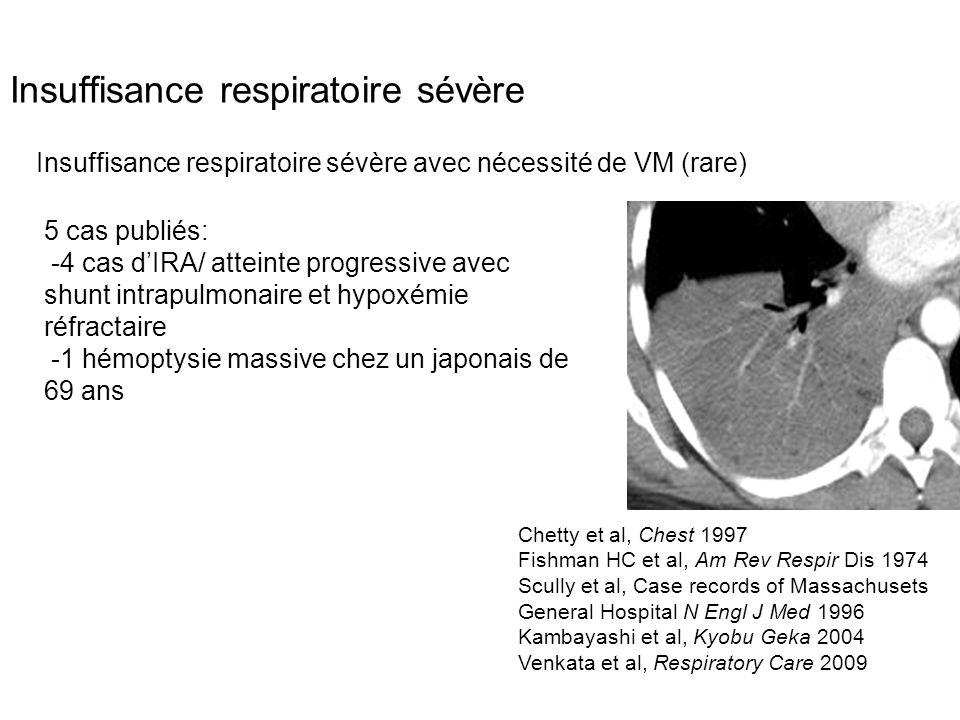 Insuffisance respiratoire sévère