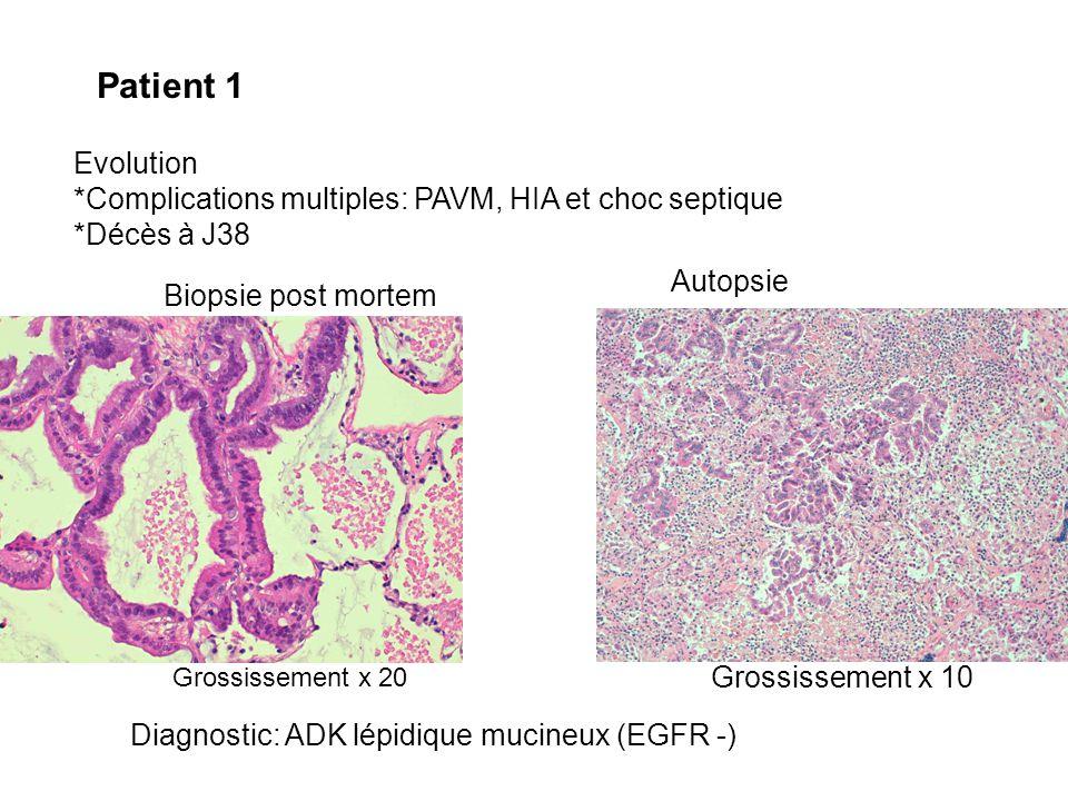Patient 1 Evolution. *Complications multiples: PAVM, HIA et choc septique. *Décès à J38. Autopsie.