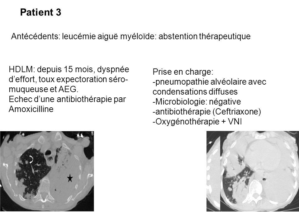 Patient 3 Antécédents: leucémie aiguë myéloïde: abstention thérapeutique.