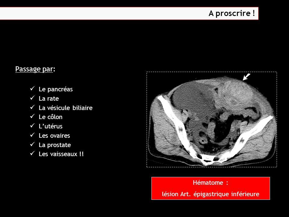 lésion Art. épigastrique inférieure