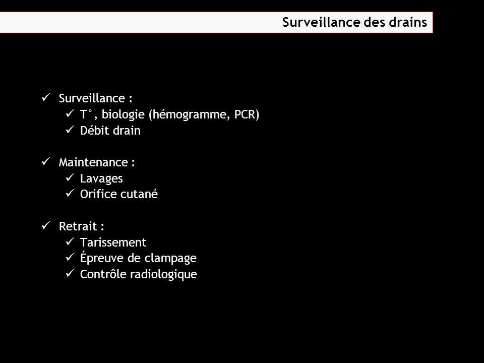 Surveillance des drains