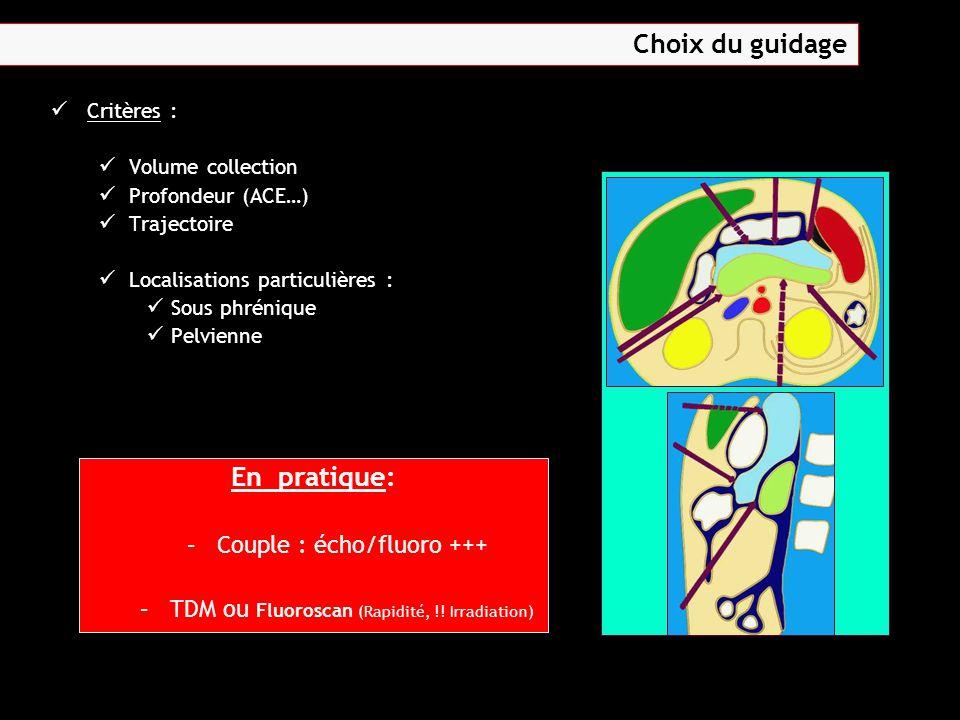 Choix du guidage En pratique: Couple : écho/fluoro +++