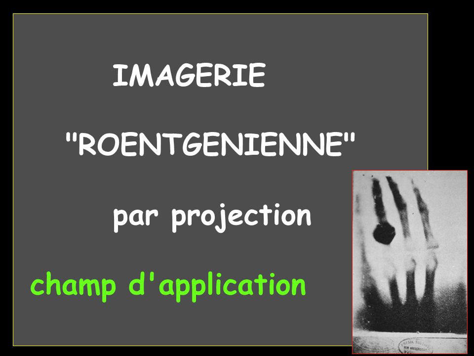 IMAGERIE ROENTGENIENNE par projection champ d application