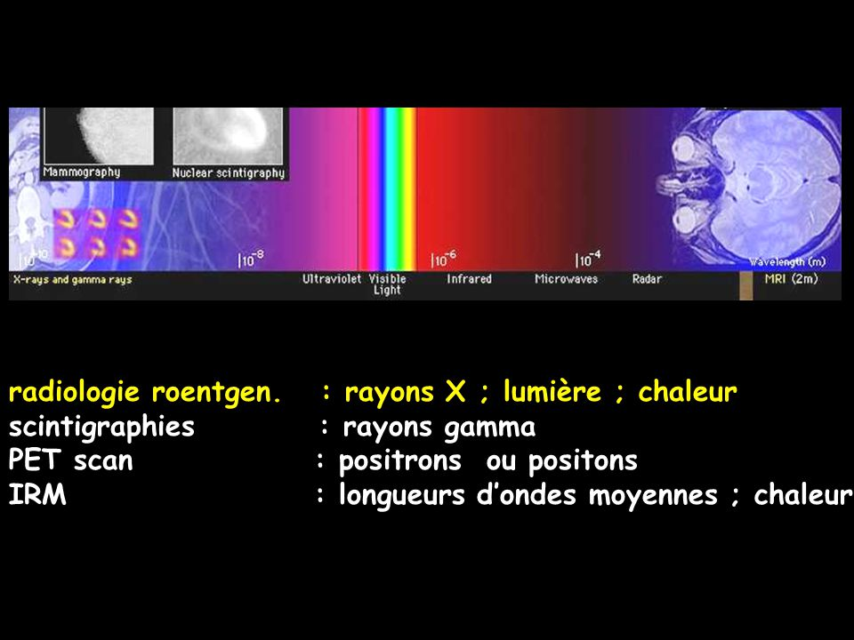 radiologie roentgen. : rayons X ; lumière ; chaleur
