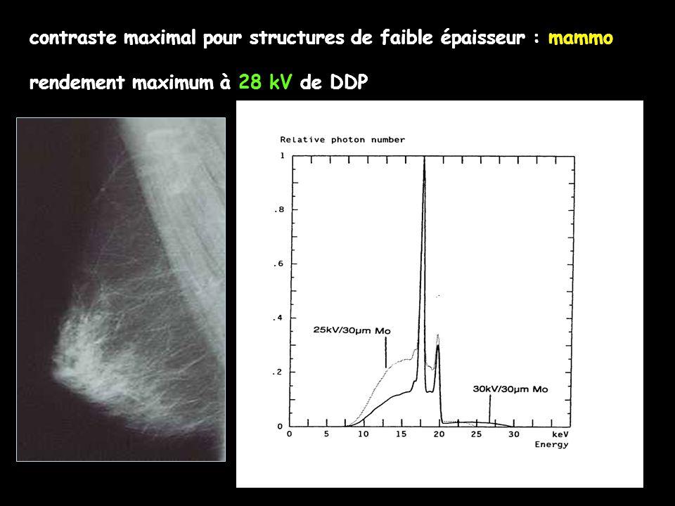 contraste maximal pour structures de faible épaisseur : mammo