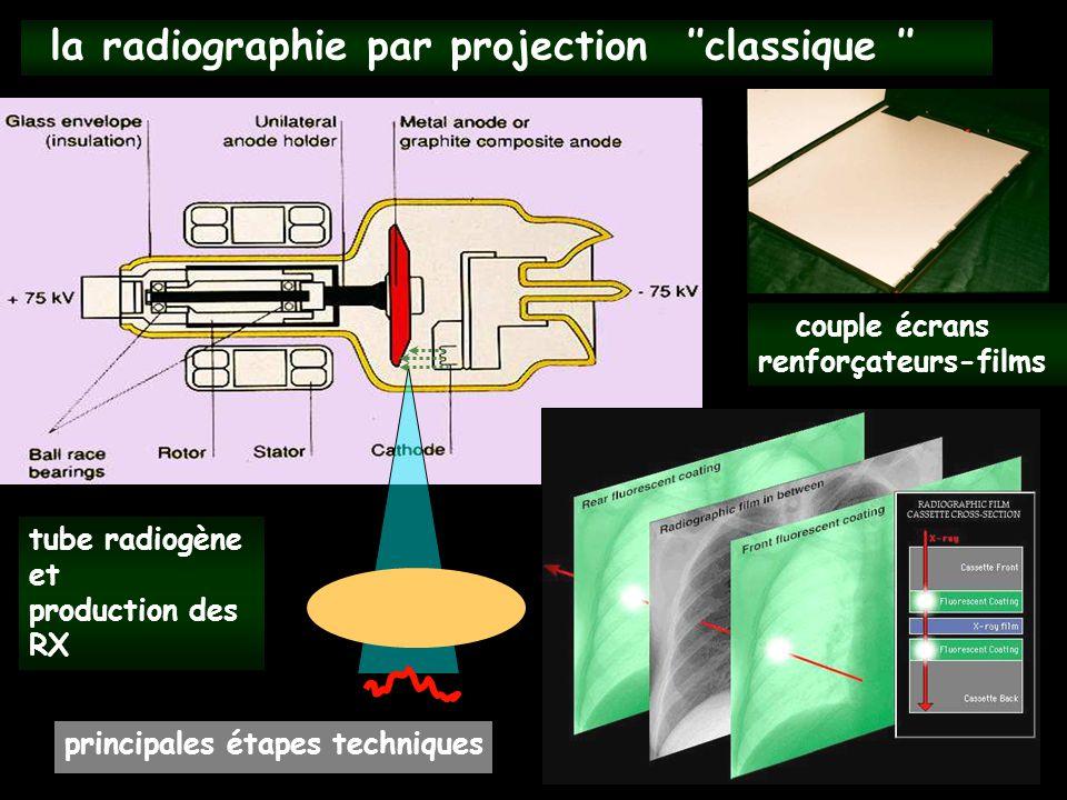 la radiographie par projection ''classique ''