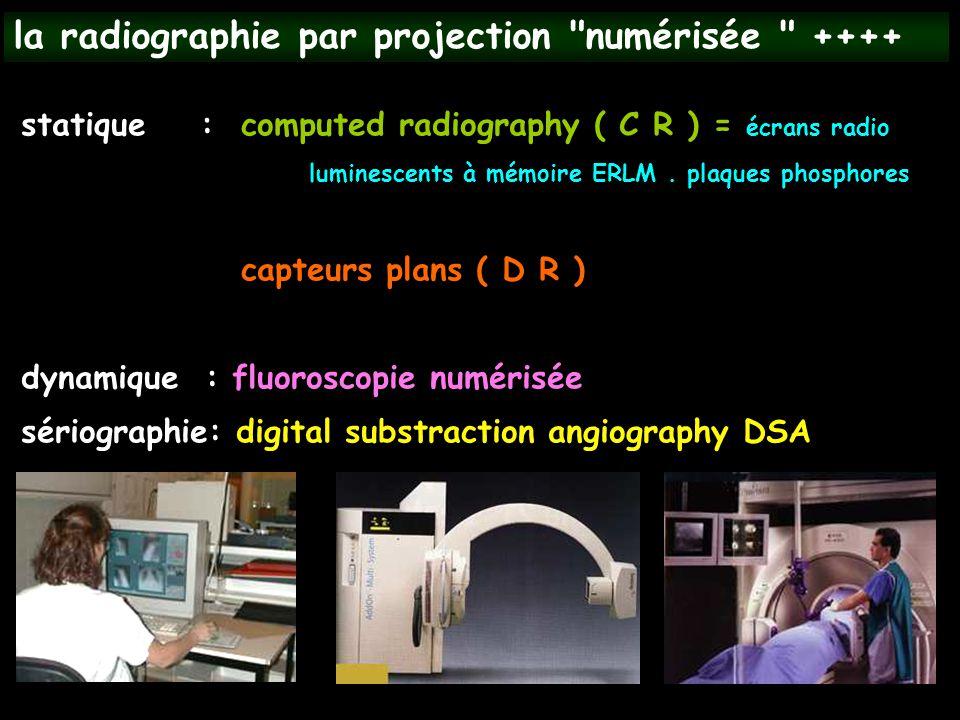 la radiographie par projection numérisée ++++