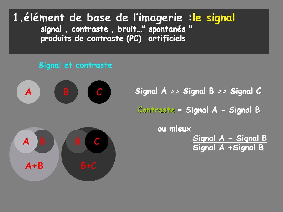 1.élément de base de l'imagerie :le signal