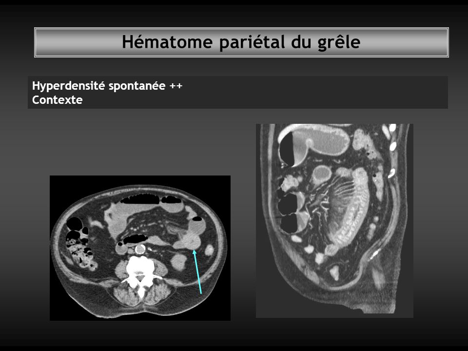 Hématome pariétal du grêle