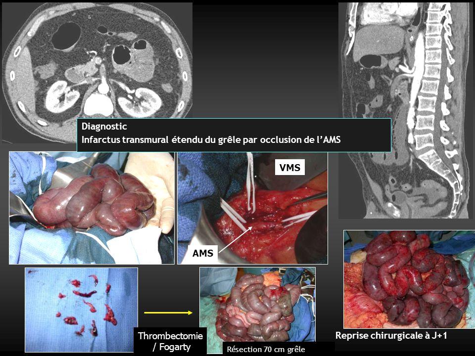 Infarctus transmural étendu du grêle par occlusion de l'AMS
