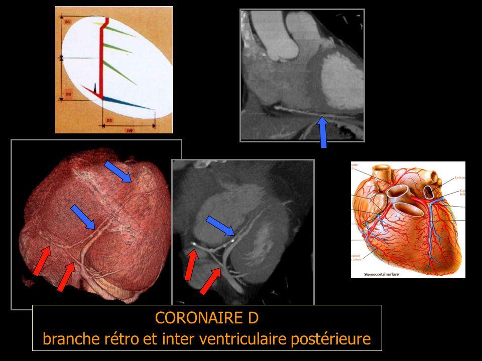 branche rétro et inter ventriculaire postérieure