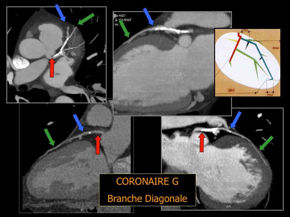 CORONAIRE G Branche Diagonale