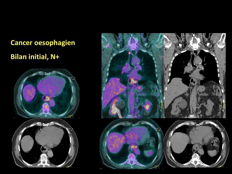 Cancer oesophagien Bilan initial, N+