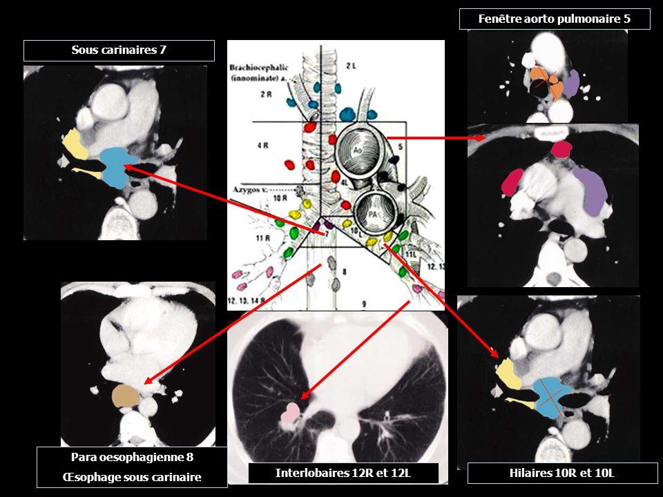 Fenêtre aorto pulmonaire 5 Œsophage sous carinaire