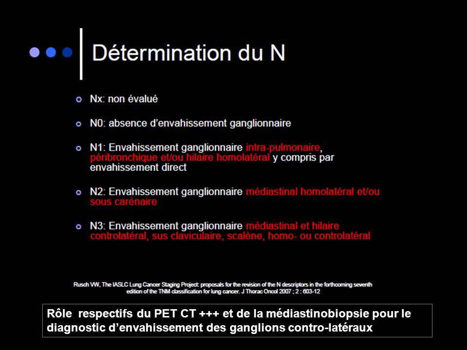 Rôle respectifs du PET CT +++ et de la médiastinobiopsie pour le diagnostic d'envahissement des ganglions contro-latéraux