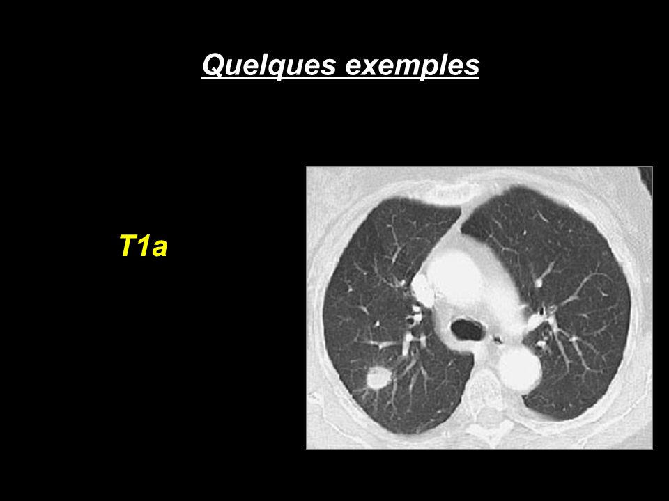 Quelques exemples T1a