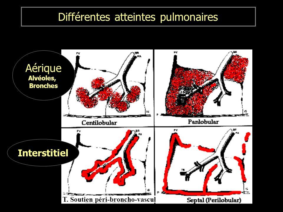 Différentes atteintes pulmonaires