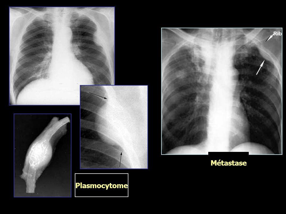 Plasmocytome Métastase