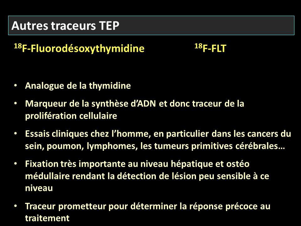 Autres traceurs TEP 18F-Fluorodésoxythymidine 18F-FLT