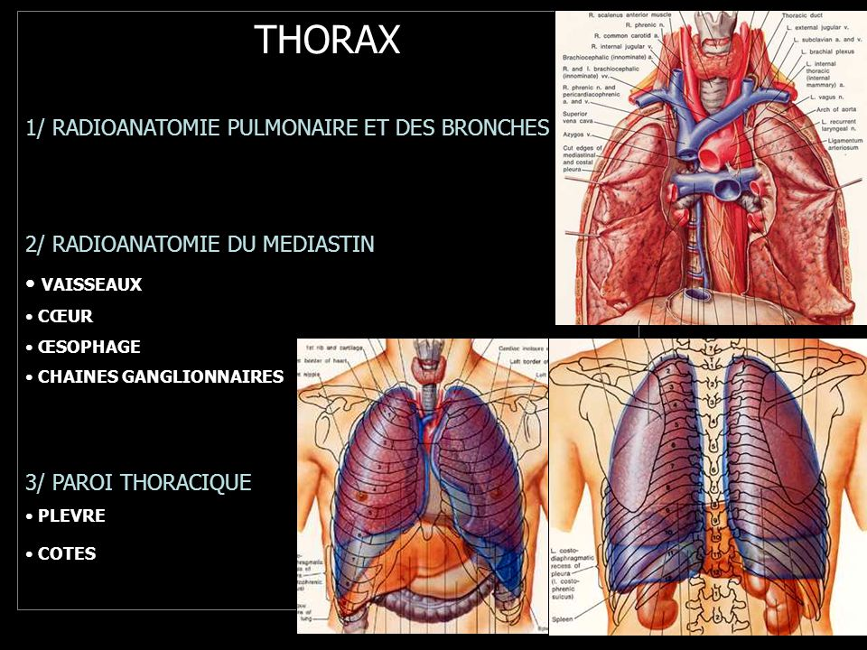 THORAX 1/ RADIOANATOMIE PULMONAIRE ET DES BRONCHES