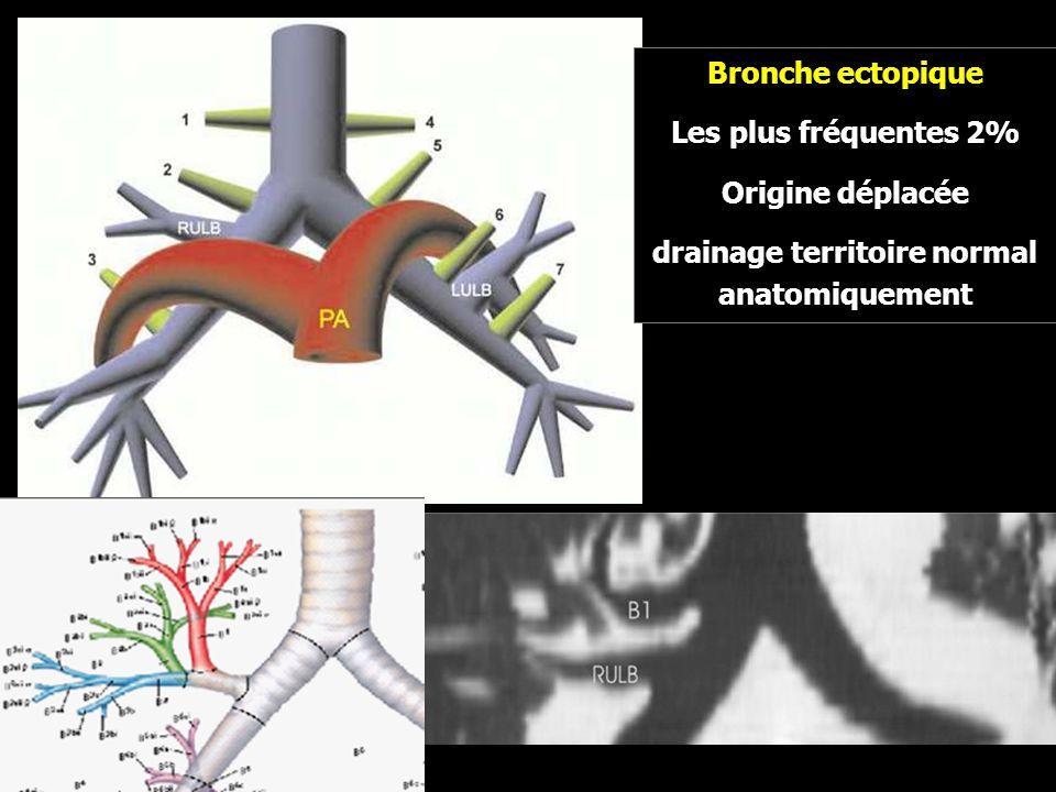 drainage territoire normal anatomiquement