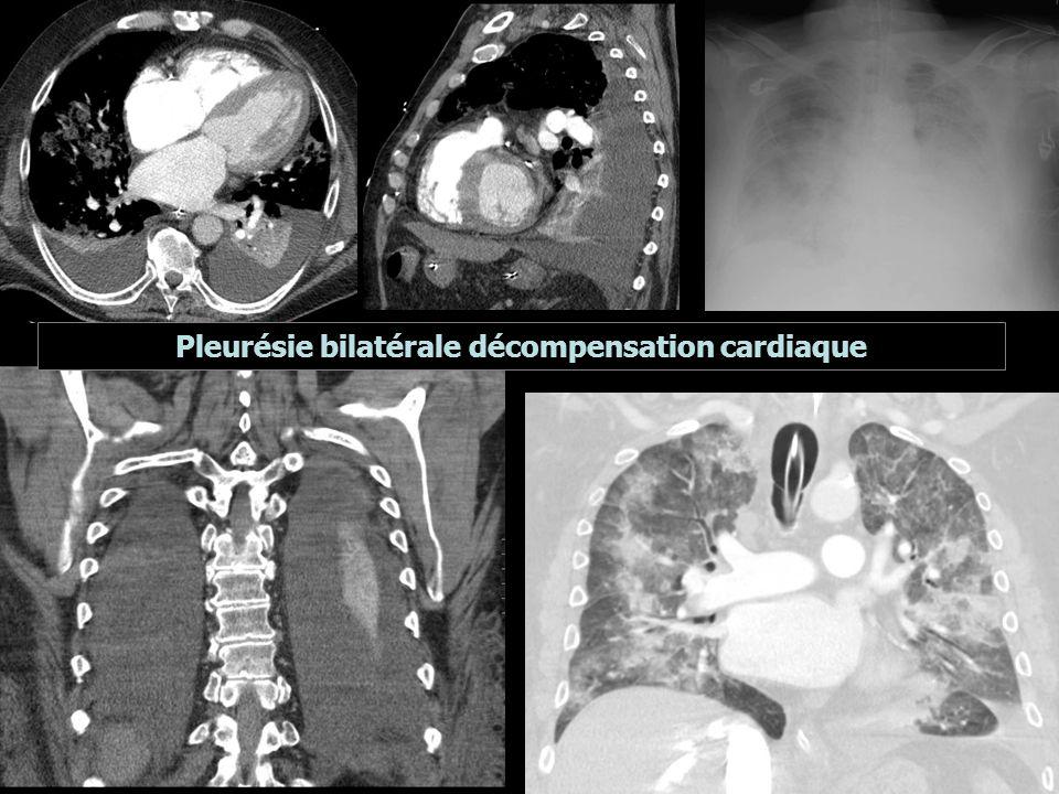 Pleurésie bilatérale décompensation cardiaque