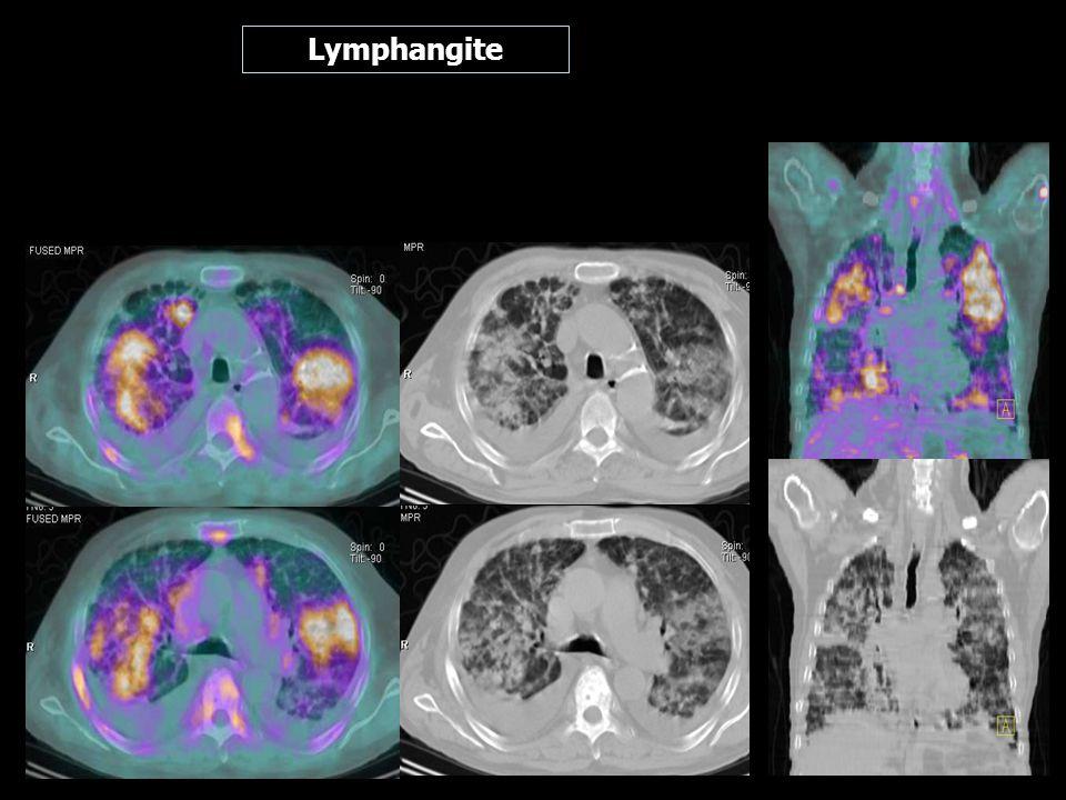 Lymphangite