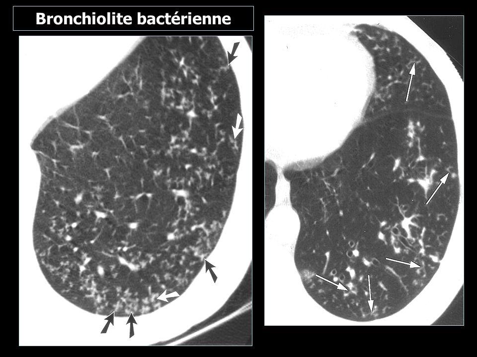 Bronchiolite bactérienne