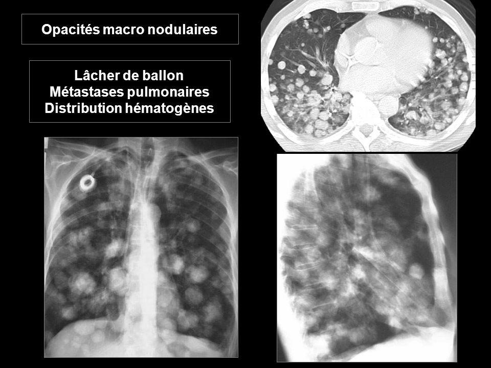Opacités macro nodulaires