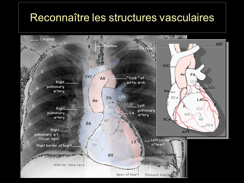 Reconnaître les structures vasculaires