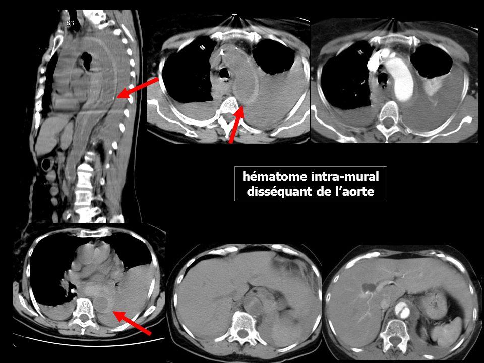 hématome intra-mural disséquant de l'aorte