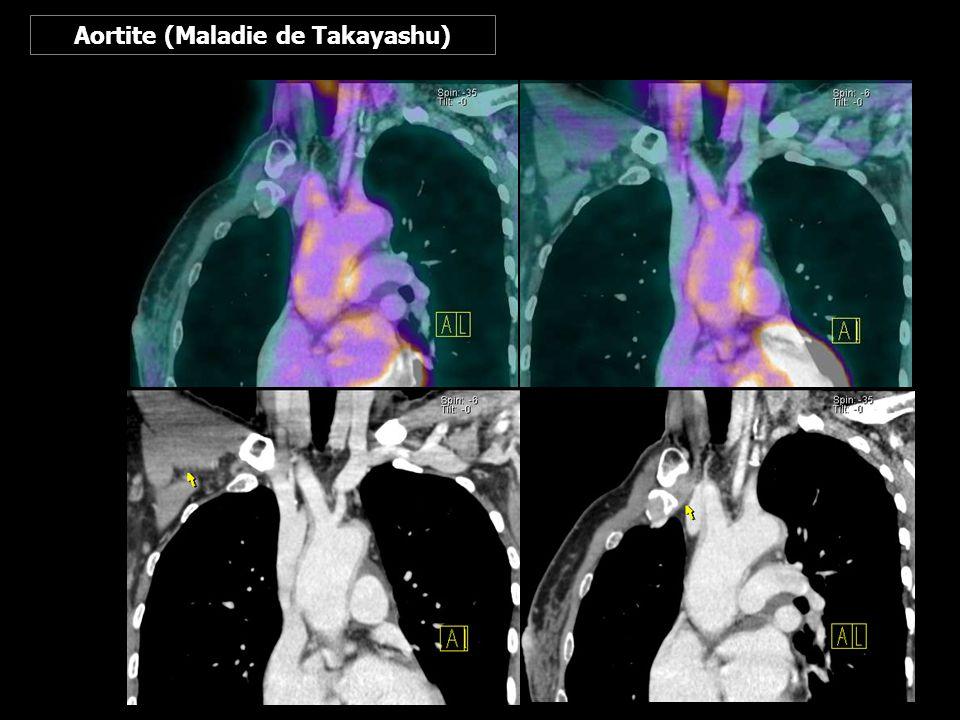 Aortite (Maladie de Takayashu)