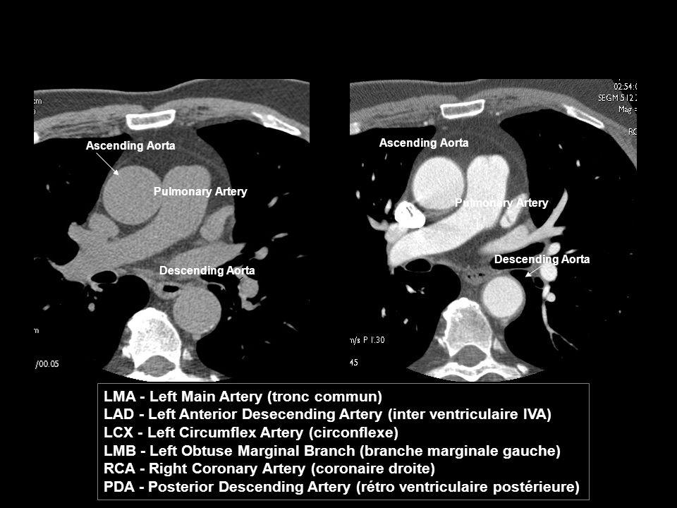 LMA - Left Main Artery (tronc commun)