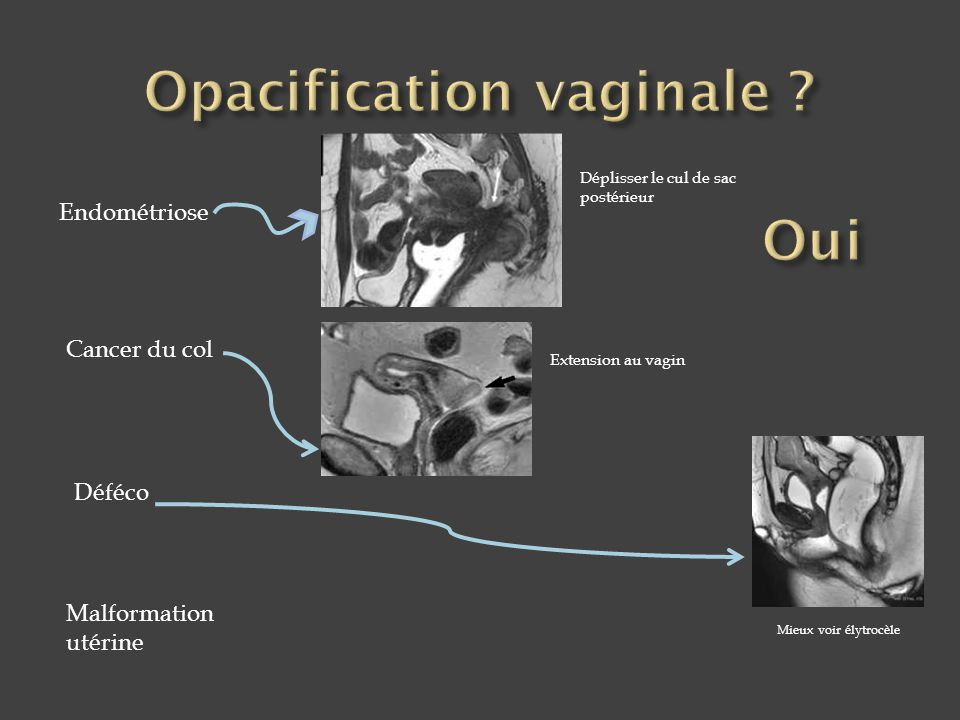 Opacification vaginale